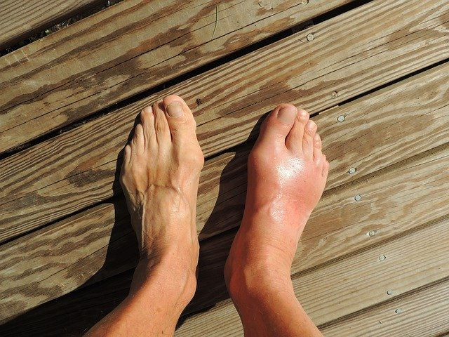 home remedies gout